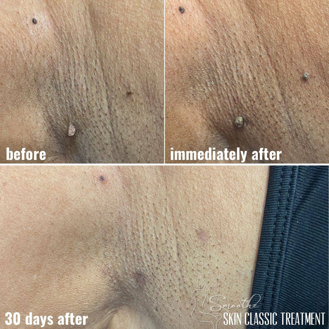 Skin Tag Removal at Smoothe LLC in Raleigh